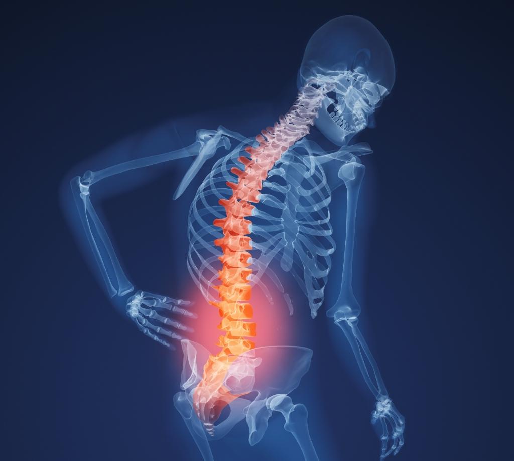 csontritkulás lábkészítmények)